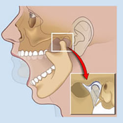 TMJ - its effects