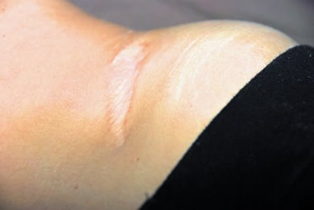 Scars are areas of fibrous tissue that have replaced normal skin, or other tissue, after injury.