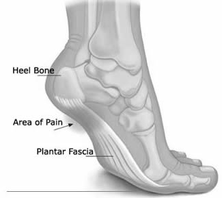 Foot image with heel and area of pain