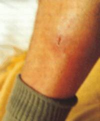 Photo 4 - Injury after treatment