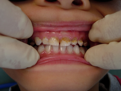 Decayed Teeth Extraction With rampant tooth decay.