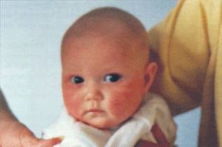 3. Baby 'Jade'. Kendal. Cumbria. Four month old baby girl. 26 March 1996