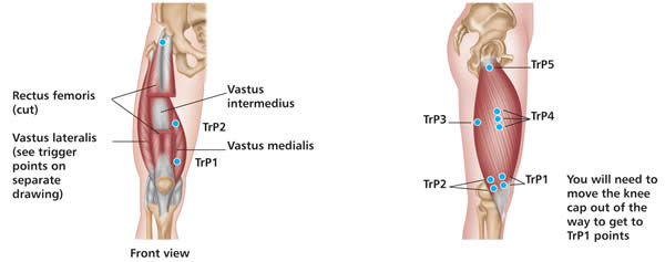 Positive Health Online Article Treating Trigger Points Reduces