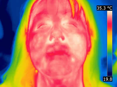 Thermal Image Patient A