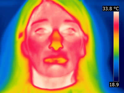Thermal image patient B