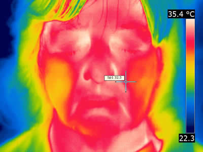 Conventional thermal image patient C