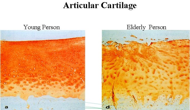 Articular Cartilage in Young and Elderly