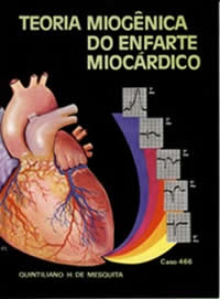 Book Myogenic Theory of Myocardial Infarction