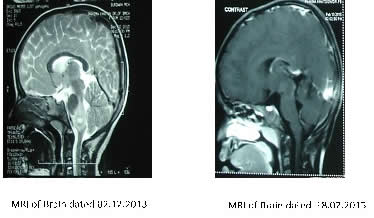Case 2 MRI of Brain