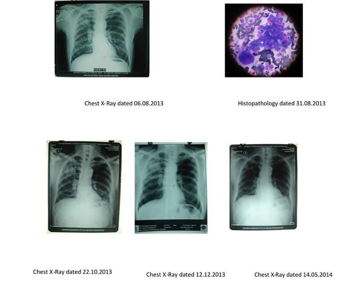 Chest X-Rays and Histopathology.