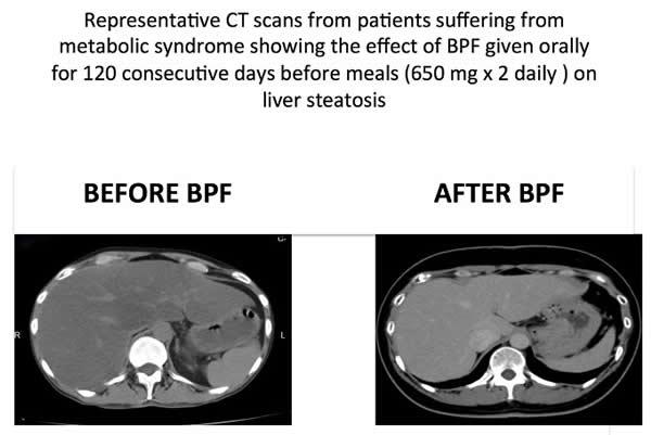 Bergamot CT steatosis