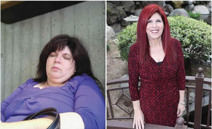 Carol Adkisson Before and After