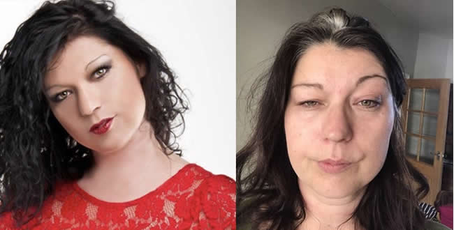 Linda Pryke Before and After Years of Suffering from ME-CFS .jpg]
