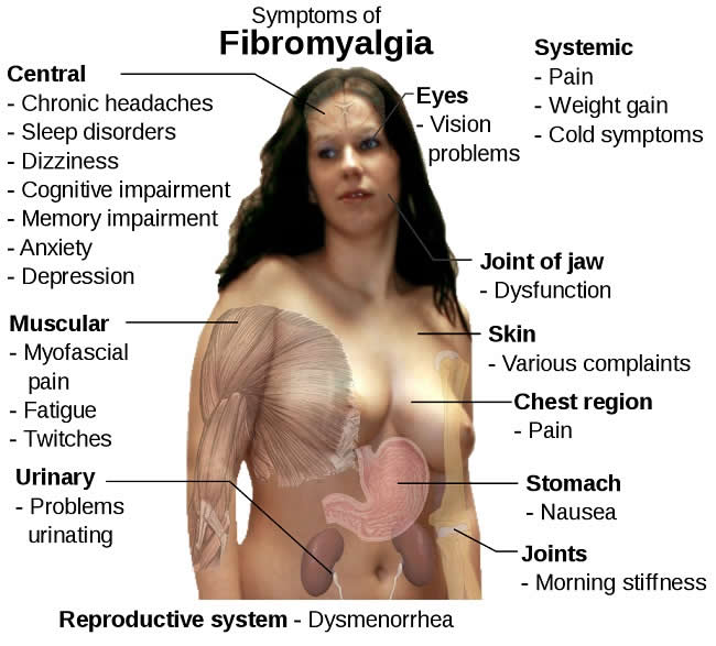 Fibromyalgia_symptoms
