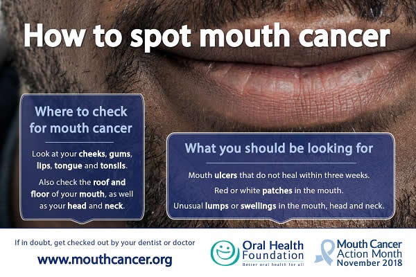 How to Spot Mouth Cancer