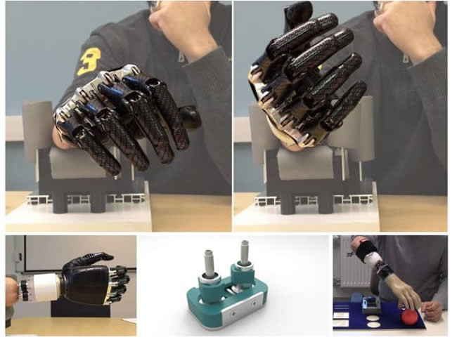 osseointegrated artificial wrist joint