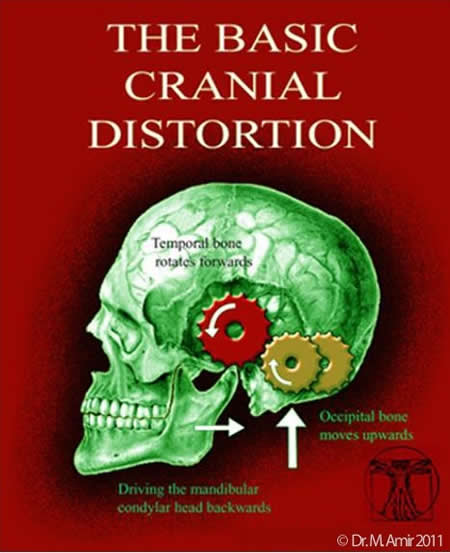 The Basic Cranial Distortion white rule cropped