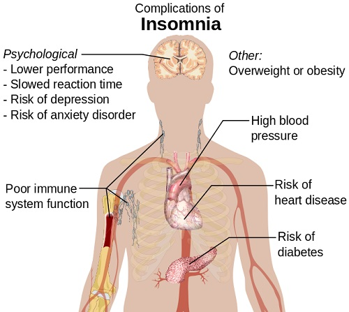 Wikipedia Complications of Insomnia