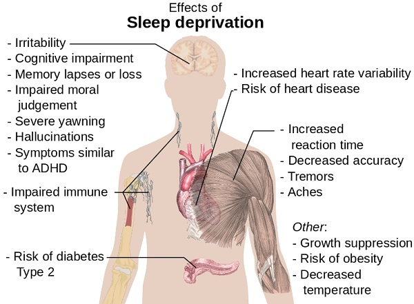 Wikipedia Effects of Sleep Deprivation