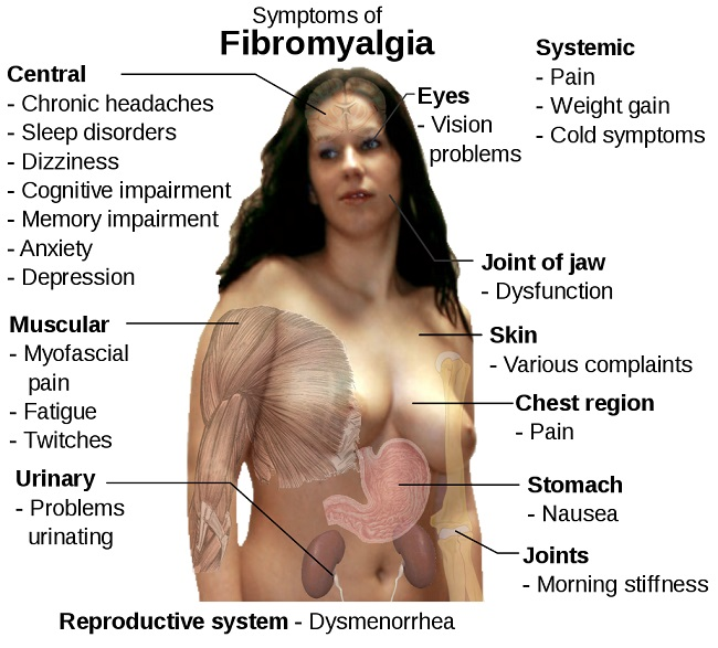 Dr Amir 255 Recovery from Fibromyalgia