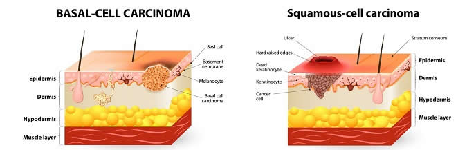 Basal-Cell and Saumous-Cell Carcinoma