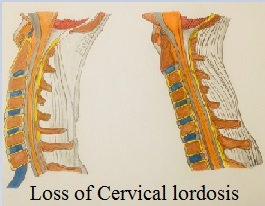 LossofcervicalLordosis