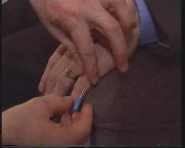 Hypnotic Pain control - close-up needle test