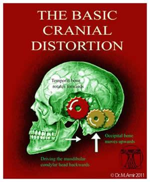 Basic Cranial Distortion