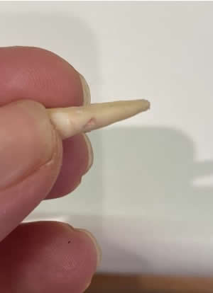 Example of an extracted tooth due to external root resorption
