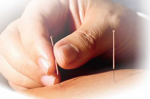 acupuncture for chemotherapy providence ri